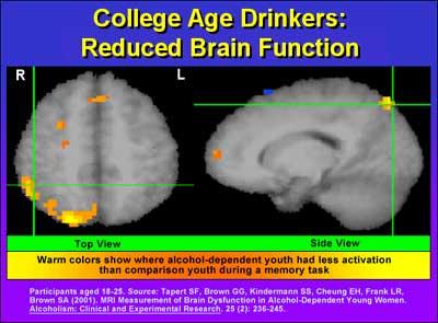 Research 4 Brain Research Image Brain